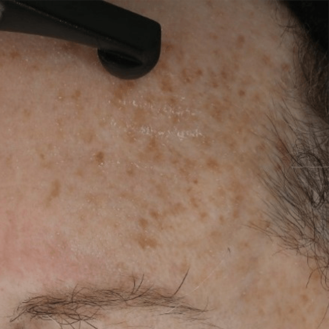 "age spots being treated with 'PhytoSpherix' ('phytoglycogen"")"